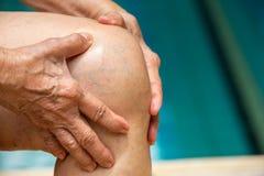 遭受膝盖痛苦的资深妇女,按摩由她的手,蓝色游泳池 免版税库存图片