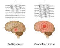 部分和概括的癫痫症 向量例证