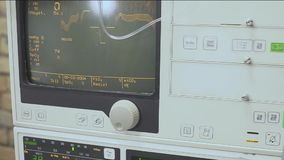重要标志和心电图显示在显示器 在手术期间的健康状态 股票录像