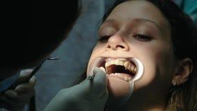 金属括号设施和定象  到牙医正牙医生的参观,咬合不良特写镜头的更正 股票视频