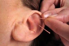 针灸耳朵 库存照片
