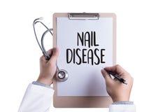 钉牢在钉子手,有onycho的手指的疾病真菌传染 库存照片
