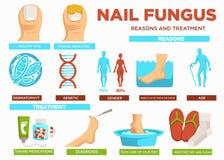 钉牢真菌原因和治疗海报与文本传染媒介 皇族释放例证