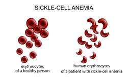 镰状细胞贫血症 库存照片