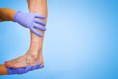 降低肢体血管考试,因为多血脉性的不足的嫌疑犯 免版税库存照片