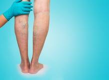 降低肢体血管考试,因为多血脉性的不足的嫌疑犯 库存照片