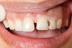 被清洗的牙齿洞 库存图片