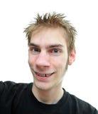 青少年大括号的微笑 免版税库存照片
