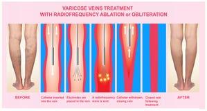 静脉曲张和治疗与射频烧蚀 免版税库存图片