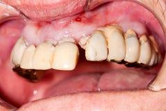 非常老牙齿桥梁 库存图片