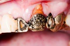 非常老牙齿桥梁 库存照片