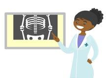 非洲放射学家医生审查的射线照相 皇族释放例证