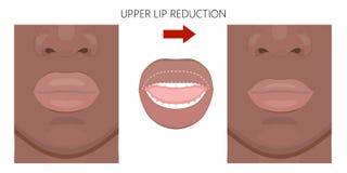面孔front_African美国上嘴唇减少 向量例证