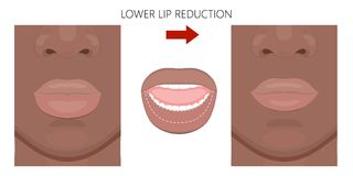 面孔front_African美国更低的嘴唇减少 向量例证
