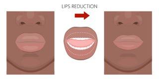 面对front_African美国上部和更低的嘴唇减少 向量例证