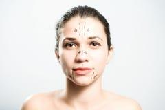 面部塑料准备好的手术 免版税库存图片