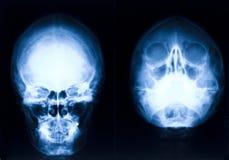 顶头X-射线 库存照片
