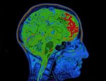 顶头显示的脑子的MRI图象 免版税库存图片