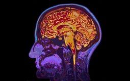 顶头显示的脑子的MRI图象 库存照片