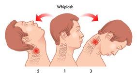 颈椎过度屈伸损伤 库存照片