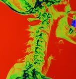 颜色提高了脊椎的X光芒 图库摄影