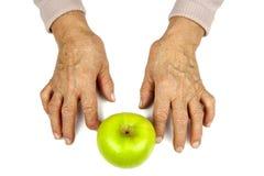 风湿性关节炎手和果子 免版税库存照片