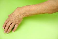 从风湿性关节炎扭屈的妇女的手 免版税库存照片
