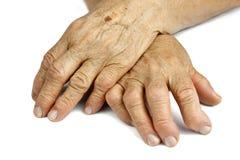 从风湿性关节炎扭屈的妇女的手 免版税库存图片