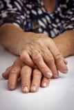 从风湿性关节炎扭屈的妇女的手 免版税图库摄影
