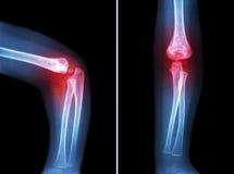 风湿性关节炎,痛风性关节炎(影片X-射线孩子'与关节炎的s手肘在手肘) (旁边和正面图、侧面和A 免版税库存图片