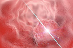食管癌症概念的治疗 库存图片
