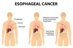食管癌症 库存例证