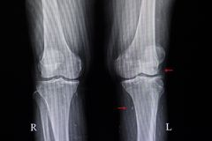 骨关节炎和cysticcercosis 库存照片