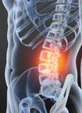 骨关节炎椎骨联接,3D例证 免版税库存照片