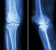 骨关节炎膝盖 影片X-射线膝盖(先前-后部和侧向看法)展示狭窄联接空间,骨赘(踢马刺), 库存照片