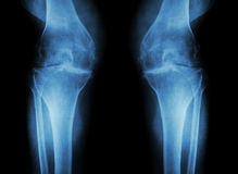 骨关节炎膝盖(OA膝盖) (两影片的X-射线与膝盖关节关节炎的膝盖:狭窄的膝盖关节空间) (医疗和Scie 免版税库存照片