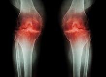 骨关节炎膝盖(OA膝盖) (两影片的X-射线与膝盖关节关节炎的膝盖:狭窄的膝盖关节空间) (医疗和Scie 免版税库存图片