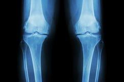 骨关节炎膝盖(OA膝盖) 两影片的X-射线膝盖(正面图)展示狭窄联接空间(联合软骨损失),骨赘 免版税库存图片