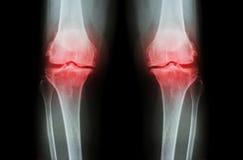 骨关节炎膝盖(OA膝盖) 两影片的X-射线膝盖(正面图)展示狭窄联接空间(联合软骨损失),骨赘 库存照片