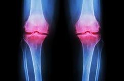 骨关节炎膝盖(OA膝盖) 两影片的X-射线膝盖(正面图)展示狭窄联接空间(联合软骨损失),骨赘 库存图片