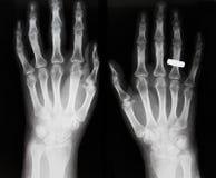 骨关节炎骨质疏松症 库存图片