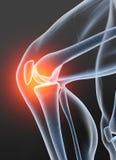 骨关节炎,痛苦的膝盖关节,3D例证2 库存照片
