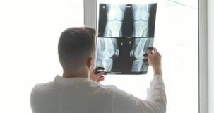 骨头矫形外科医生诊断损伤在X-射线图象站立在窗口附近的,后面看法的 股票录像
