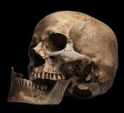 头骨开放嘴,被伤的下颌 免版税库存照片