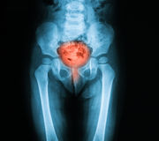 骨盆,仰看法的X-射线图象 库存照片