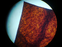 骨细胞osteocyte osteocytes 库存图片