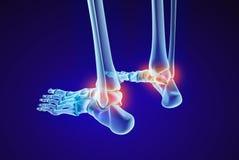 骨骼脚- injuryd距骨骨头 X-射线视图 医疗上准确例证 免版税库存图片