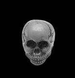 头骨,黑白 免版税库存图片