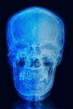 头骨X射线辐射与计算机芯片和电路的图象 免版税库存图片