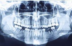 高分辨率全景牙齿造影 图库摄影